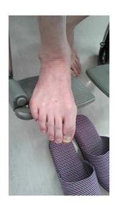 後藤さん右足親指の爪が変形